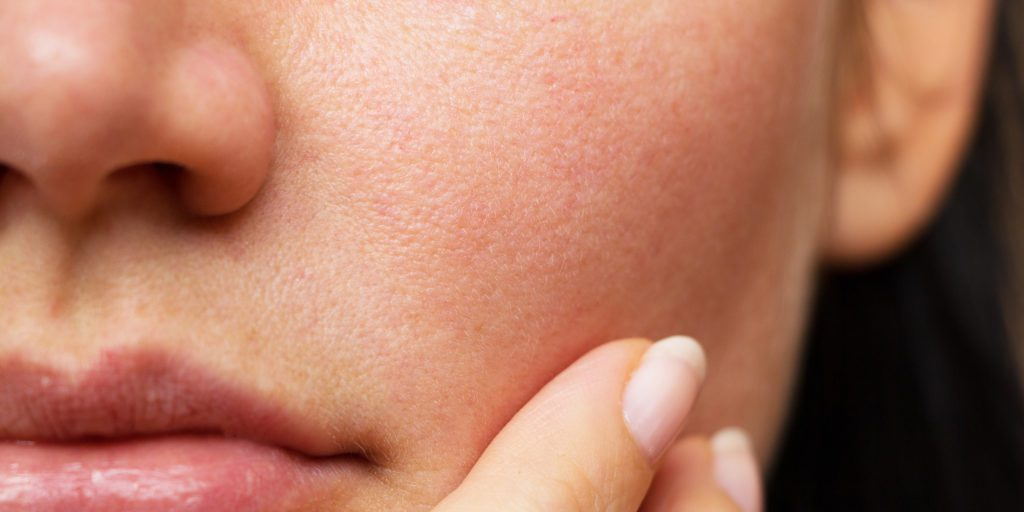 how to find your skin type today main 002 190424 c9a914b38344e66226253843f3f552bf
