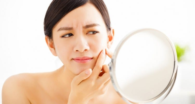 7 Simple and Proven Ways to Get Rid of Acne
